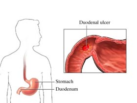 Perforated Duodenal Ulcer
